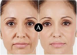 Skin!O - zur Verjüngung - como aplicar - Amazon - funciona